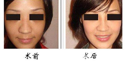 鼻翼缩小术的优势是什么